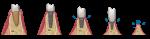 proporzione corono-implantare-CDE